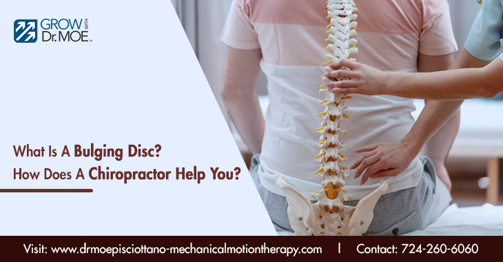 What Is A Bulging Disc? How Does A Chiropractor Help You?